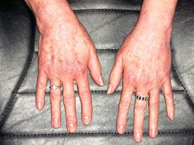 Ema McKinley's Healed Hands